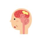 認知症診断と<br>摂食嚥下障害の特徴